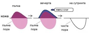 Кожа графика pimple stop1