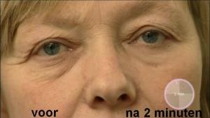 Wrinkle-Stop-Eye-NLa